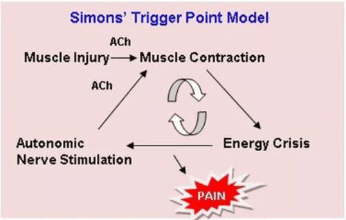 trigger point model