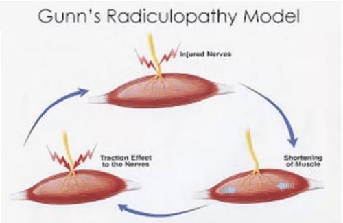 radiculopathy model