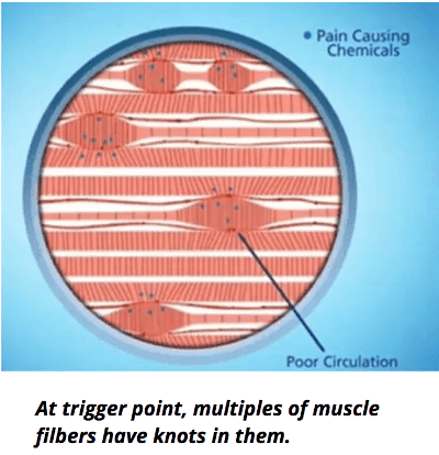 trigger point of muscle fibers